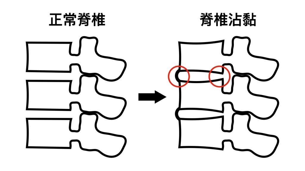 僵直性脊椎炎的脊椎沾黏