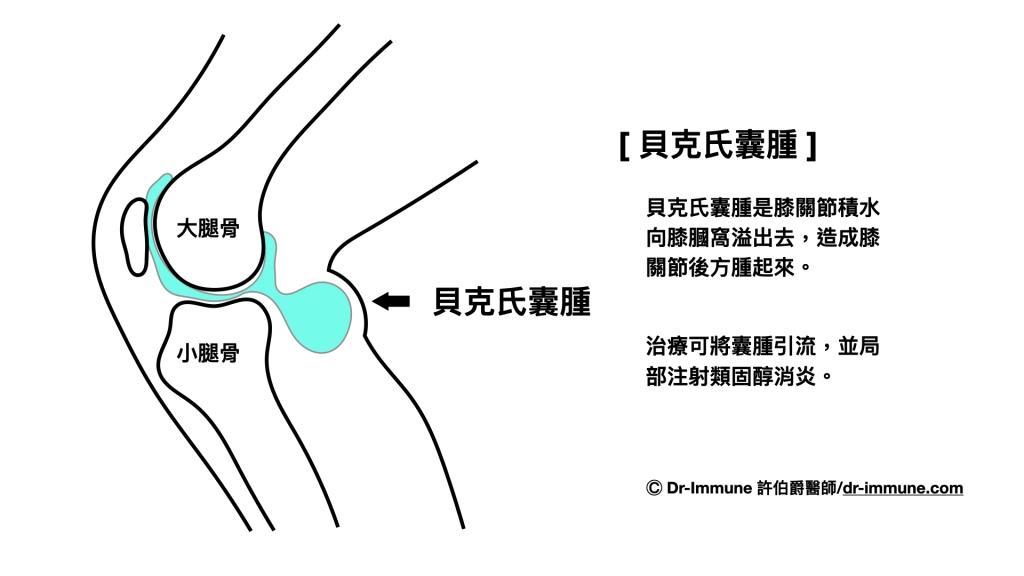 貝克氏囊腫-許伯爵醫師_dr-immune.com