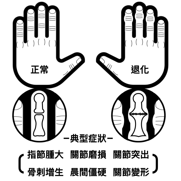 手的退化關節炎典型症狀有指結腫大、關節磨損、關節突出、骨刺增生、晨間僵硬與關節變形