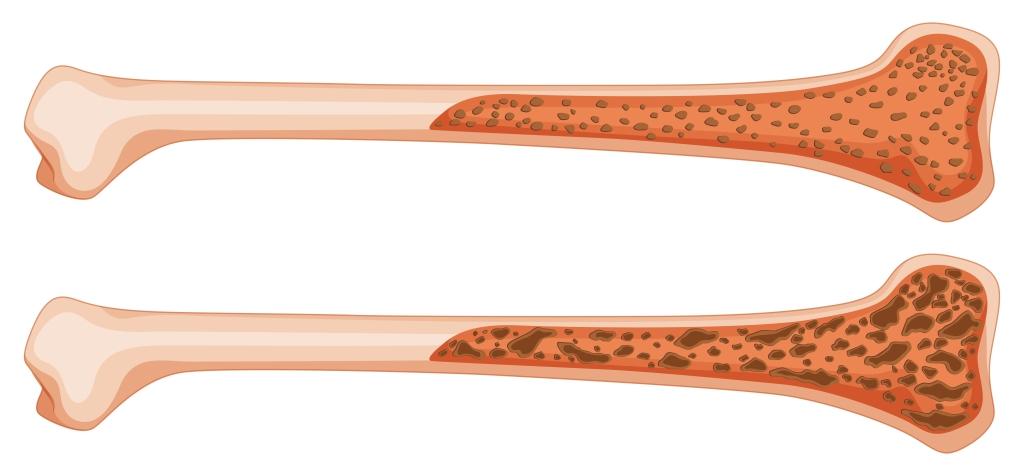 骨質疏鬆,骨頭孔隙變大,質地變鬆脆易斷。
