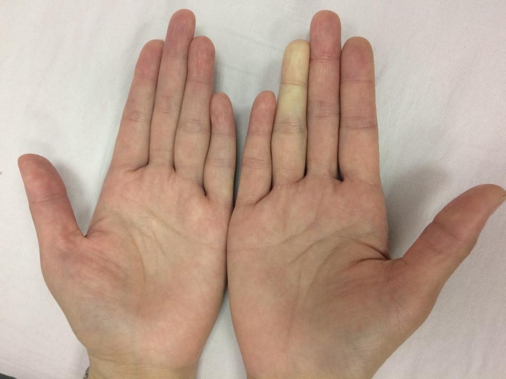 雷諾氏症的典型表現為遇冷指節發白或是發紫