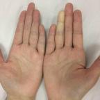 手指頭遇冷又紫又白?當心雷諾氏症—雷諾氏症最需要的三種治療。