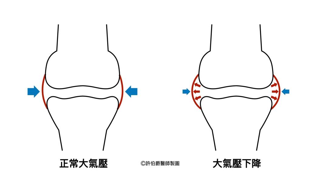 氣象病:氣壓下降,關節比較腫脹,滑囊敏感的人會感受到緊緊、脹脹、痠痠等不適感。