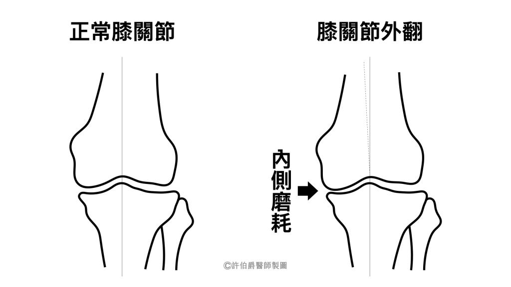 肥胖容易膝關節外翻造成內側磨耗,可能增加退化性關節炎的風險。