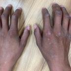 手指好硬,皮膚也緊繃,我是硬皮症嗎?還是全身性硬化症?
