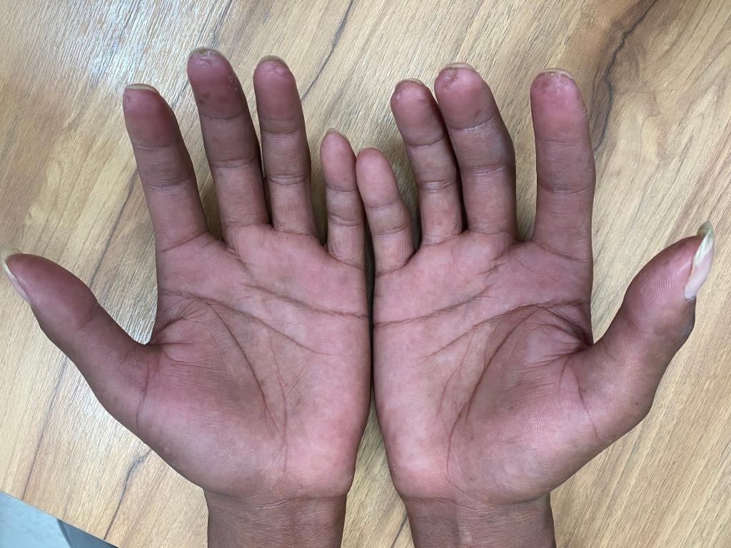 全身性硬化症或硬皮症可能在指尖出現小小的不容易癒合的傷口或小傷疤。