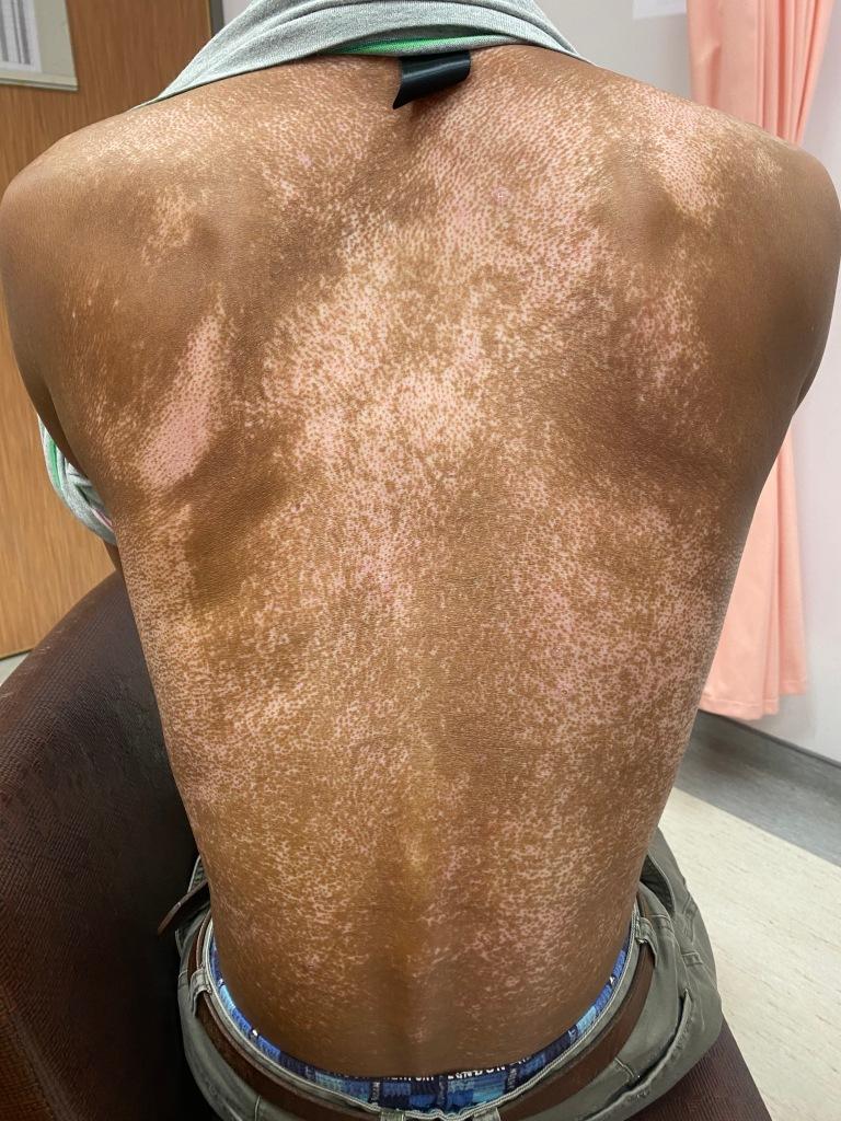 全身性硬化症或硬皮症的病人在皮膚可以出現膚色變黑且混雜著不勻稱的白色斑點