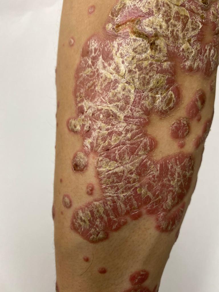 典型的斑塊型乾癬皮膚病灶